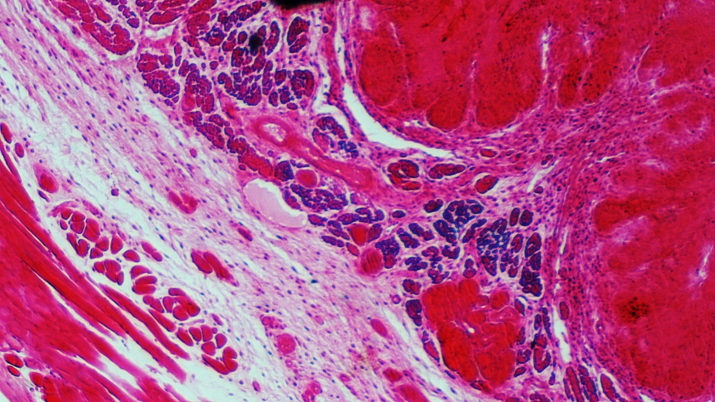 connective_tissue_1