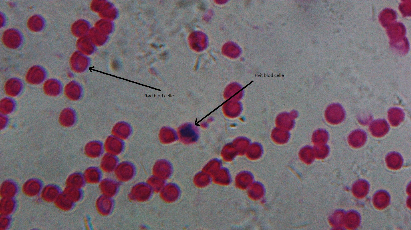 blood_cells_human